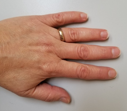 Miriah Hetherington hand